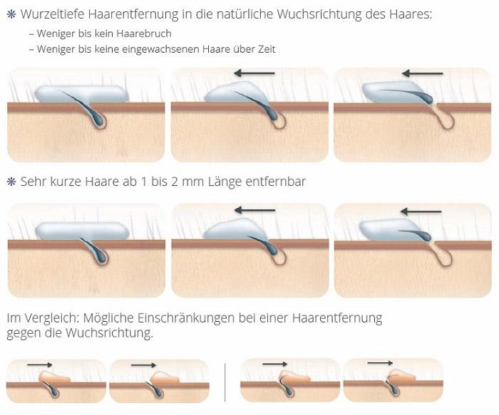 Grafik: Wurzeltiefe Haarenfernung in die natürliche Wuchsrichtung des Haares
